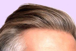 همه چیز درباره کاشت مو به روش sut